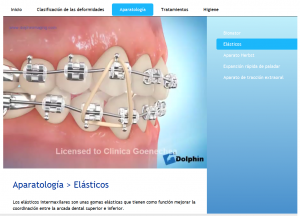 Videos informativos sobre ortodoncia
