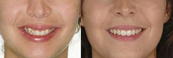 Ortodoncia Adultos Antes y Despues 1