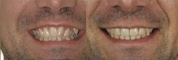 Ortodoncia Adultos Antes y Despues2